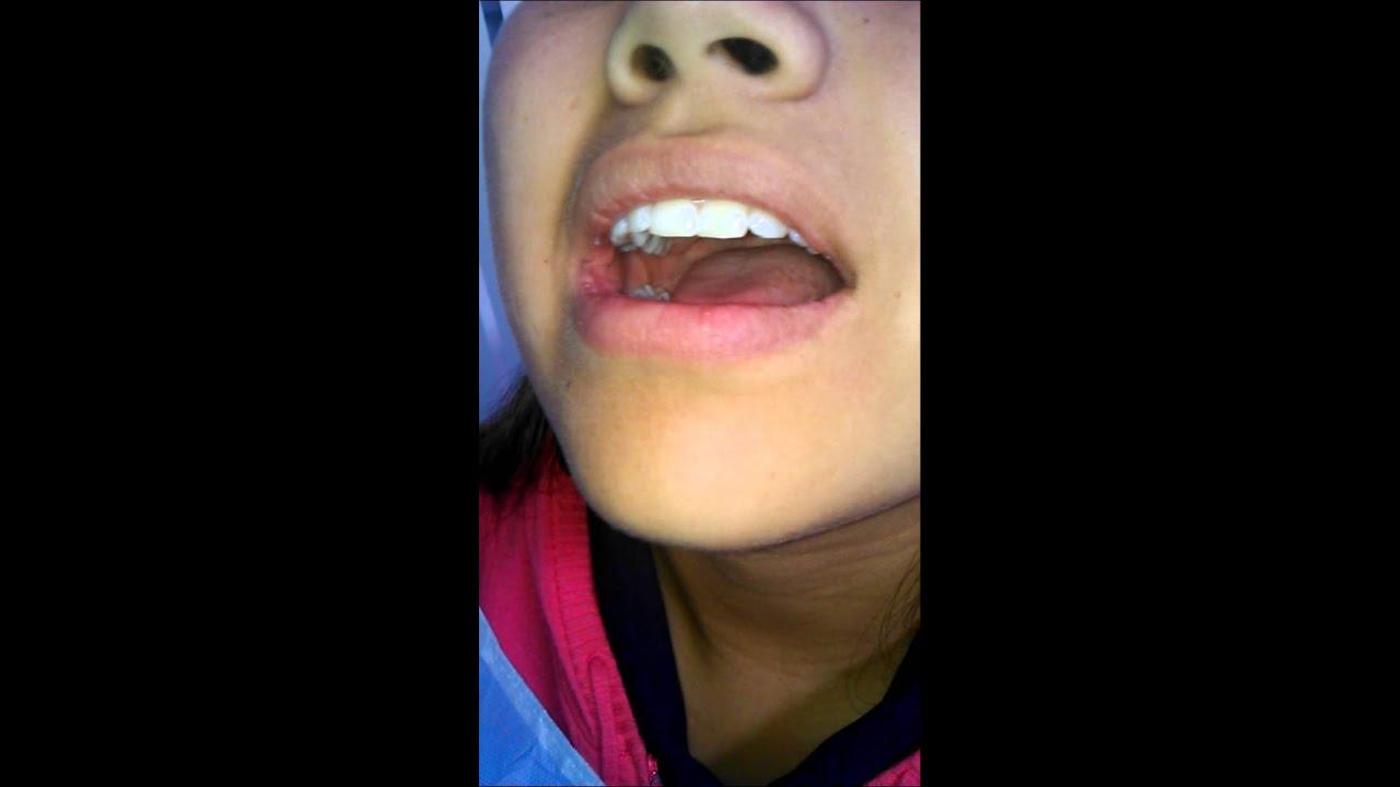 Anatomía de La Cavidad Oral - YouTube