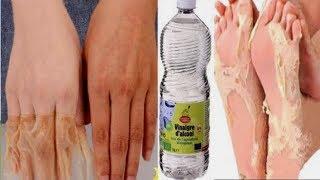 Une demi tasse de vinaigre soigner vos pieds et vos main pour toujours