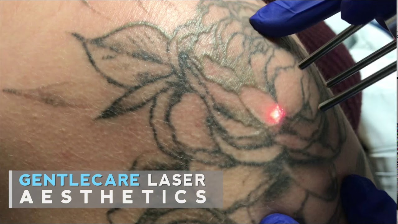 Tattoo Sleeve Removal By Dr Tariq Ali Khan Md Youtube