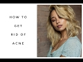 10 Tips On How To Get Rid of Acne   Aja Dang