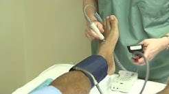 How to perform an ankle brachial index