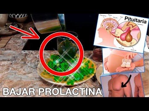 Bajar de peso con prolactina alta