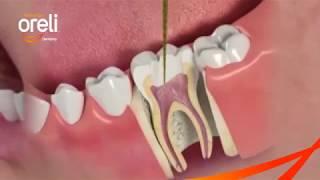 Điều trị tủy răng 36