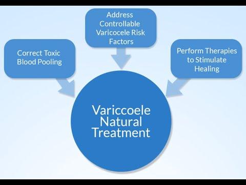 Varicocele Treatment Without Surgery
