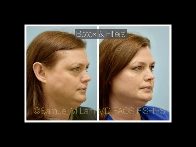 Dallas Botox and Fillers Before and After