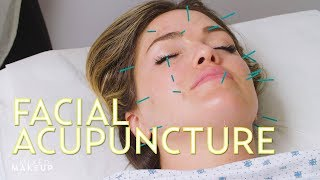 Is Facial Acupuncture a Botox Alternative? We Found Out! | The SASS with Susan and Sharzad