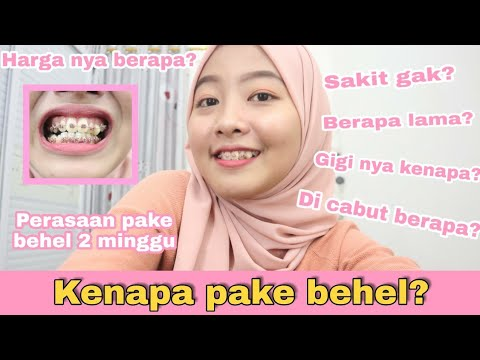 SHARE PENGALAMAN PASANG BEHEL 2 MINGGU!!!! | BEHEL STORY