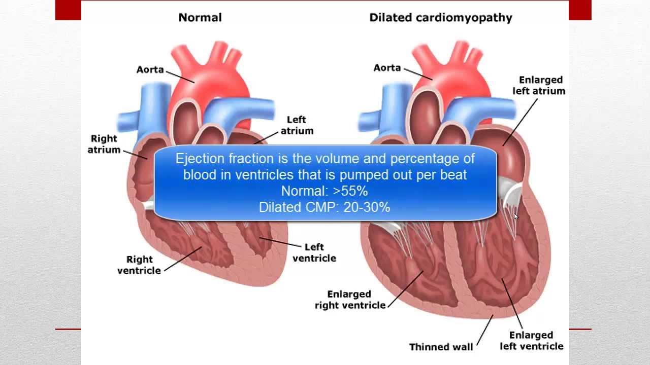 cardiomyopathy cmp youtube
