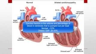 Cardiomyopathy (CMP)