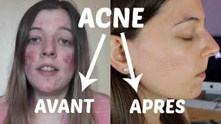 ACNE : Mon expérience et traitements naturels