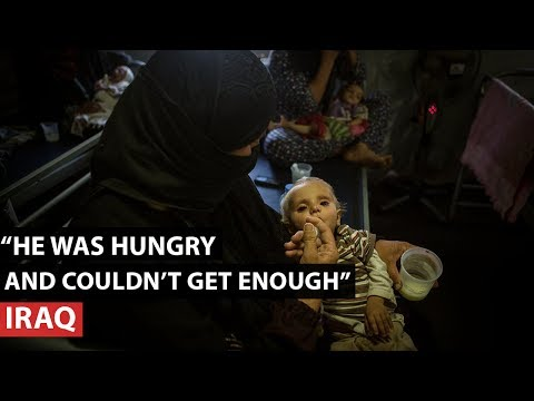 Iraq I Malnourished infants