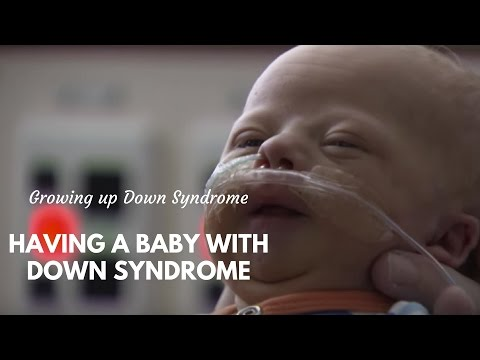 Raising A Baby With Down Syndrome
