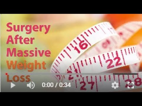 Straight Talk About Surgery After Major Weight Loss