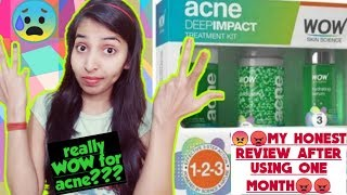 HONEST REVIEW || OF WOW SKIN SCIENCE ACNE DEEP IMPACT TREATMENT KIT||ALL POSITIVE/NEGATIVE REACTION