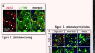 Group N: B-amyloid: Alzheimer's Partner In Crime