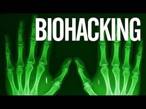 Biohacking - Implanty NFC i RFID - cybermodyfikacje przyszłości