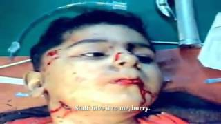 SNN | Syria | Idlib | Wounded Child Suffers Silently | Feb 17, 2013 | 18+ ONLY