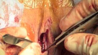 Labiaplasty (Labia Minora Reduction) and vaginoplasty by Dr. Daniel Medalie
