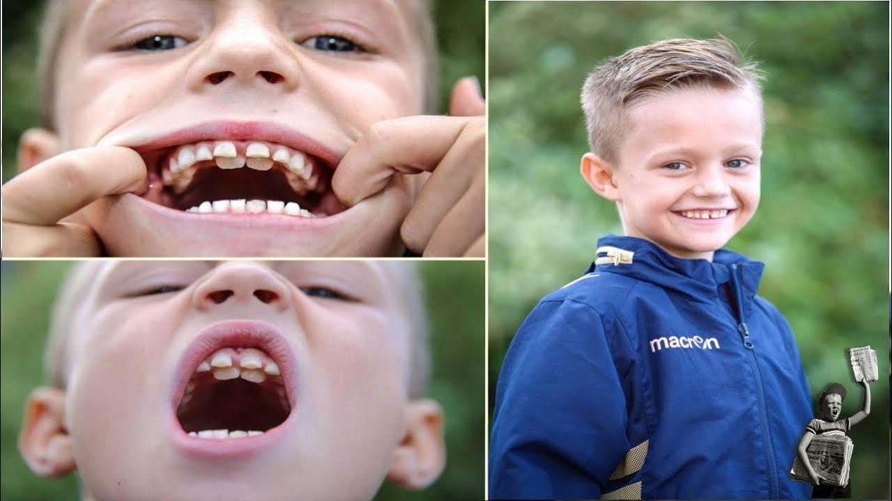 Shark boyMeet schoolboy nicknamed Jaws with TWO sets of