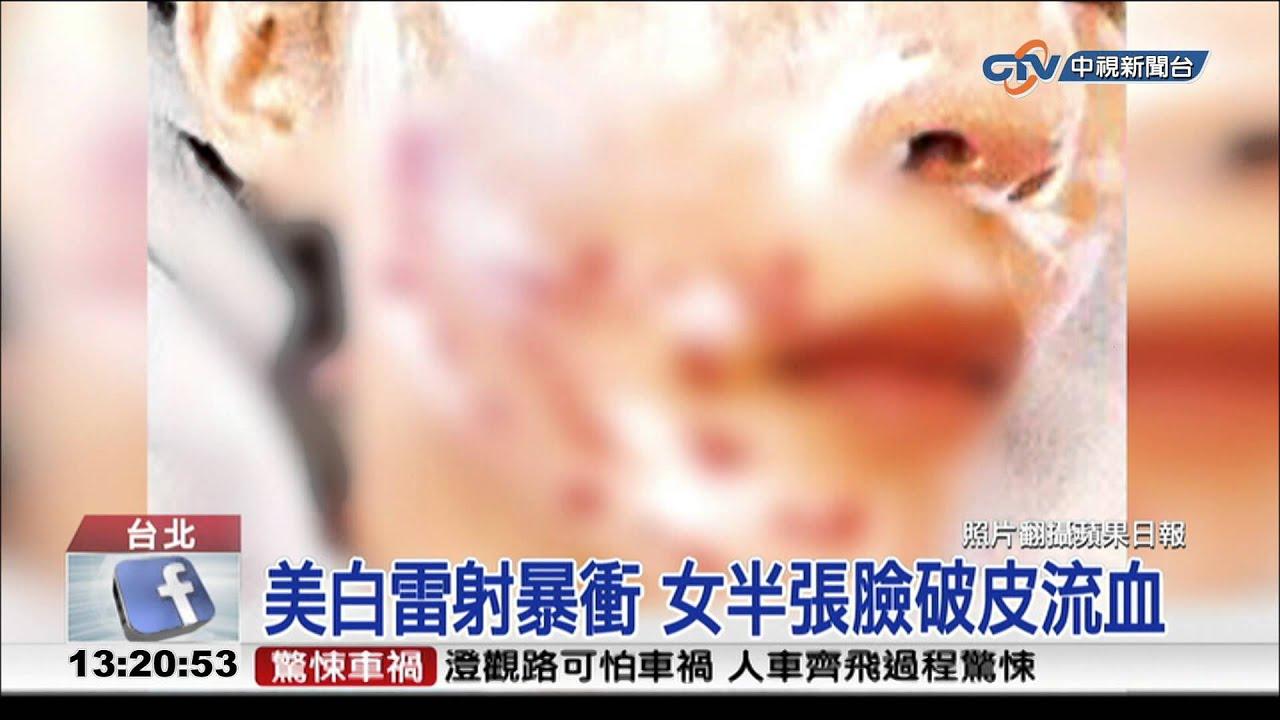 【中視新聞】美白雷射暴衝 女半張臉破皮流血 20150123 - YouTube