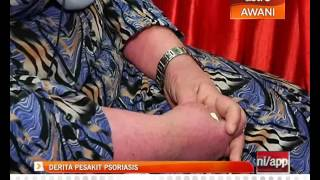 """This video """"Stevens-Johnson Syndrome """" is part of the Lecturio course Dermatology - Allergic and Im."""