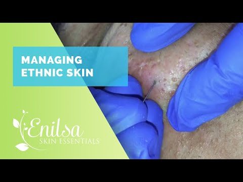 Managing Ethnic skin Extractions part 2