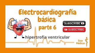Electrocardiografía básica: 6 - Hipertrofia ventricular.