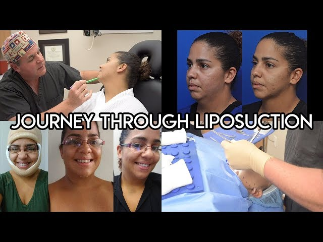 Journey Through Liposuction