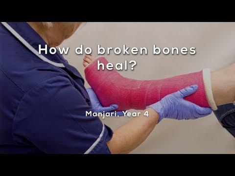 How do broken bones heal?