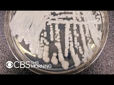 CDC warns about drug-resistant superbug fungus Candida auris