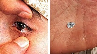 Dieses Mädchen weint Kristalle! Menschen mit unglaublichen Fähigkeiten