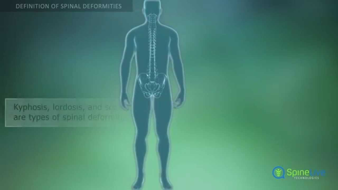 Spinal Deformities. Definition - YouTube