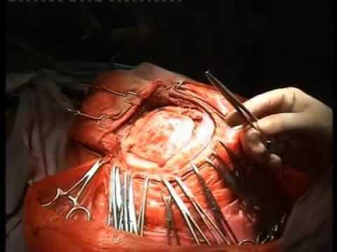Operasi Tumor Otak ..!!! - YouTube