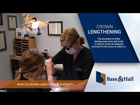 What is Crown Lengthening Surgery?