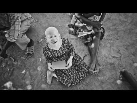Albinos of Tanzania
