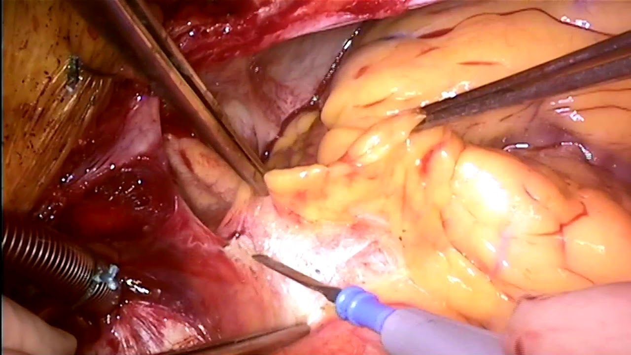 Intramural Coronary Artery Unroofing