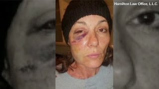 Woman alleges cop hurled her into cell, shattering bones