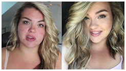 hqdefault - Best Foundation To Cover Acne Scars Redness