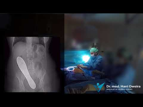Dr. Oweira TV: Episode 1: Forgotten Metal Plate...