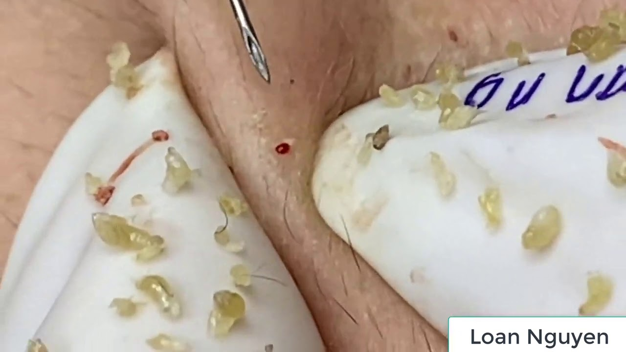 Removal blackheads (n9) 8/8/2020| Loan Nguyen