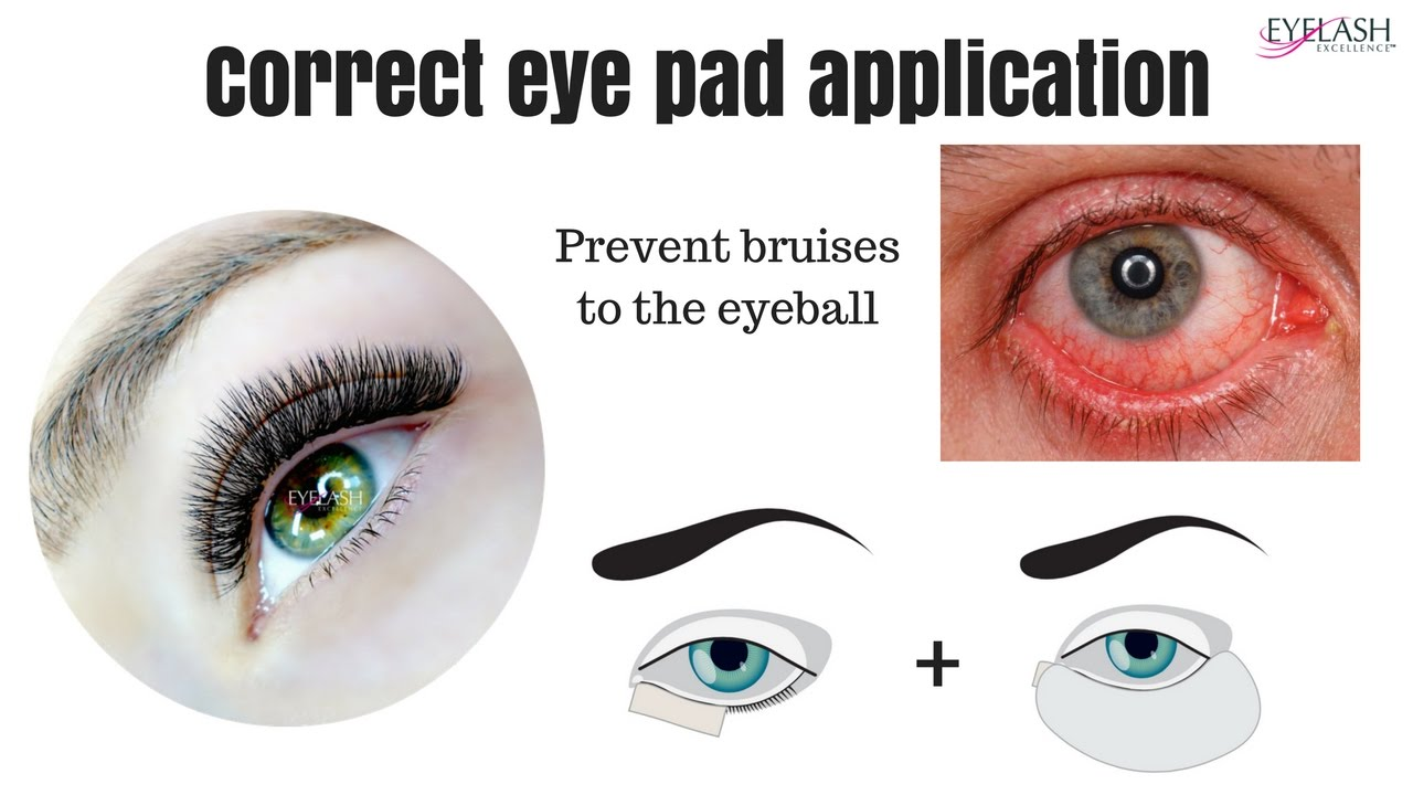 813fa6a88f8 IMPORTANT* CORRECT EYE PAD APPLICATION - prevent the bruised eyeball.  Frankie Widdows Eyelash Excellence