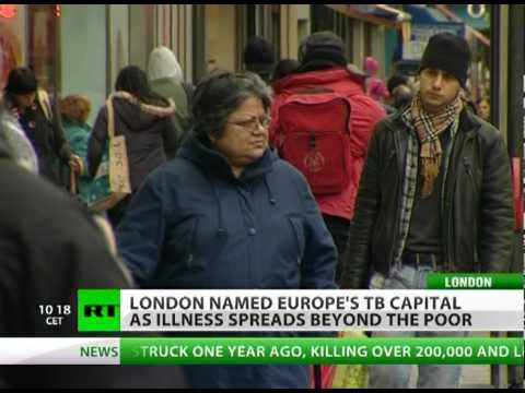 White Plague Back: London TB Capital of Europe?