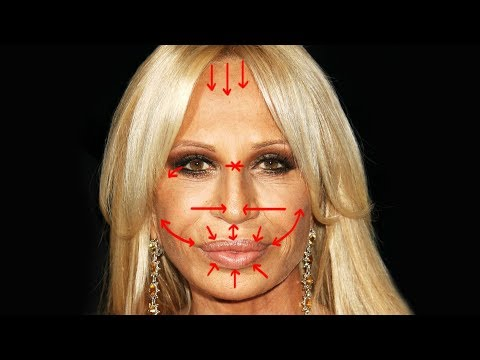 Removing DONATELLA VERSACE'S Plastic Surgery