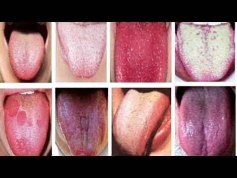★ Просто высунь язык, чтобы определить одну из этих распространенных болезней. Диагностика по языку