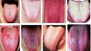 видео Глоссит: причины, симптомы и лечение заболевания