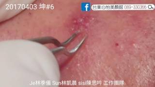 Inflamed Cyst The Final Squeeze & Curette Dr. JE Pimple Popper