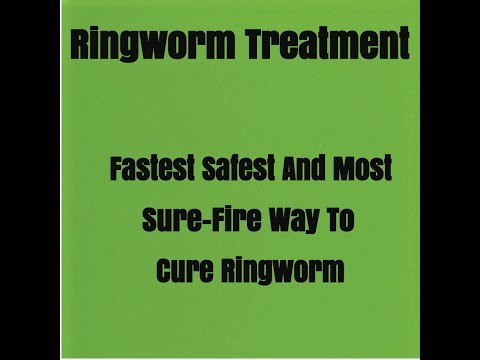 Best 63+ How To Get Rid Of Ringworm With Home Remedies Fast