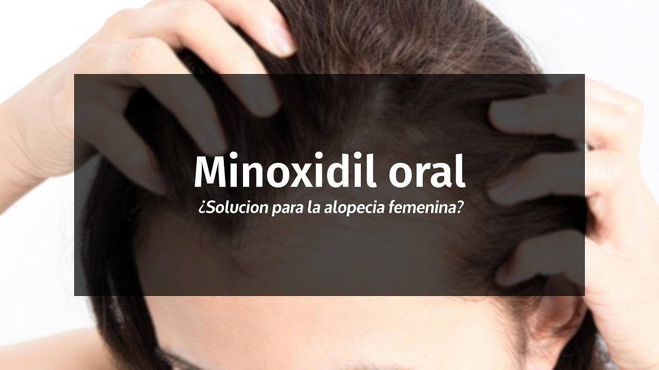 Minoxidil oral: ¿solución para la calvicie femenina?