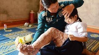 """(VTC14)_Hành trình đứng lên của cô bé """"chân voi"""" ở Tây Nguyên"""