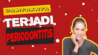 Pathogenesis of Periodontitis.